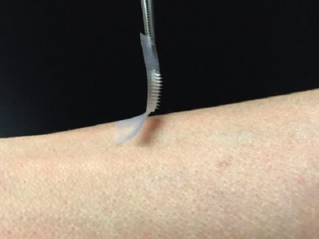 Parches inteligentes de insulina | (( La 97 )) Radio Fueguina